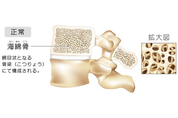 正常な場合の骨密度
