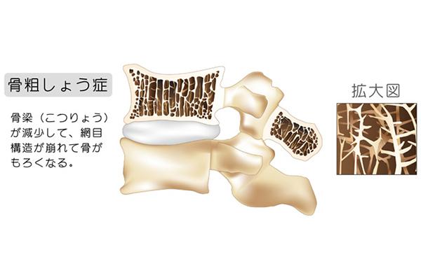 骨粗鬆症の場合の骨密度