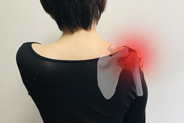 肩関節診療について